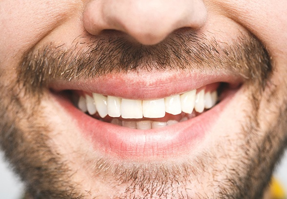 Close up of man's smile after seeing cosmetic dentist in Loveland