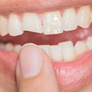 Closeup of smile with chipped tooth