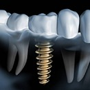 Animated implant supported dental crown placement process