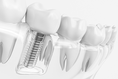 Animated implant supported dental crown