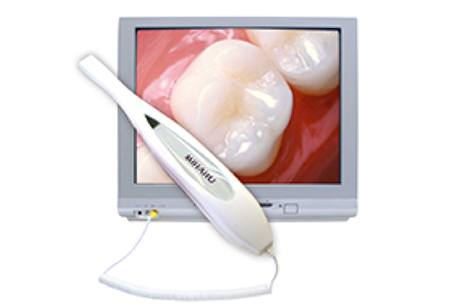 Intraoral images of teeth on computer screen