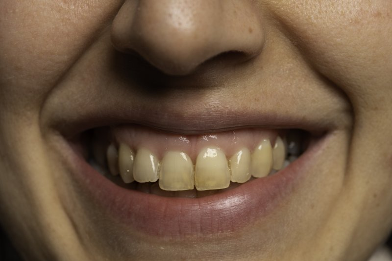 Person with stained teeth
