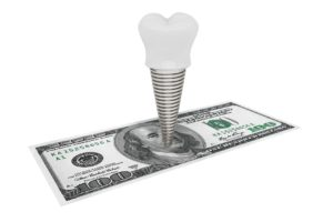Image representing dental implant cost